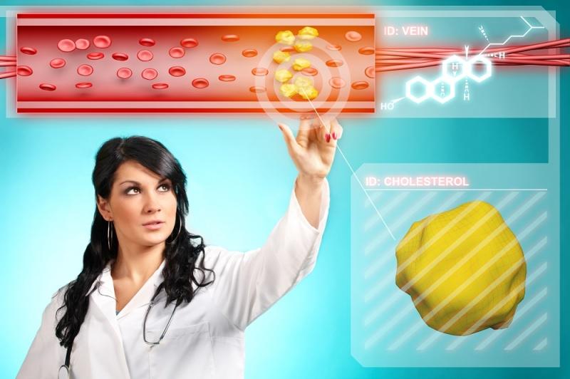 Hva er optimale kolesterolverdier?