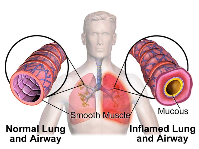 Frukt og grønnsaker-risiko-astma