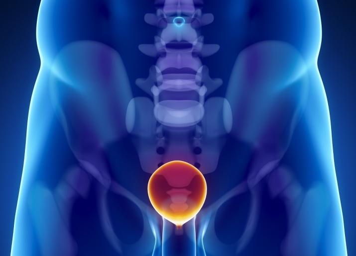 Meieriprodukter øker risiko for å dø av/ved prostatakreft